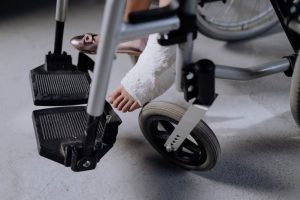 girl foot in plaster on a wheelchair